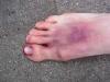 blau unterlaufener Fuß